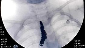 Gắp sợi dây chuyền bạc dài 14cm trong khí phế quản của bệnh nhi 28 tháng tuổi