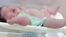 Bé sơ sinh nặng 6,2kg