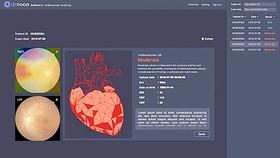 Dùng AI chẩn đoán bệnh về mắt, tim mạch