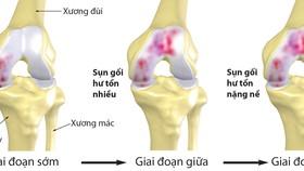 Bệnh nhân thoái hóa xương, khớp ngày càng trẻ hóa