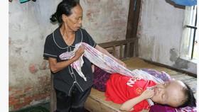 Bà Hồng chăm sóc cô con gái khi chào đời chưa được 5 tháng thì bị não úng thủy, nằm liệt giường