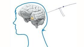 Dùng tia laser giúp bệnh nhân ung thư não sống lâu hơn so với hóa trị