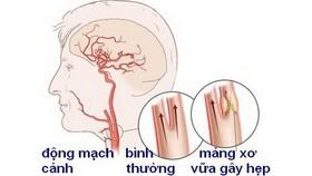 Chớ coi thường bệnh hẹp động mạch cảnh