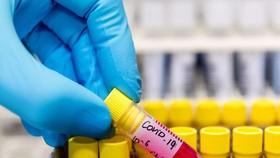 Phát hiện chủng virus SARS-CoV-2 ở Malaysia có khả năng lây nhiễm gấp 10 lần