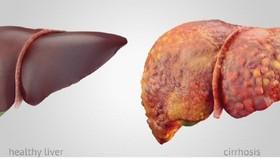 Gan khỏe mạnh (trái) và gan xơ (phải). Ảnh: Shutterstock