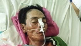 Anh Nguyễn Văn Công bị liệt nửa người, phải sống đời thực vật