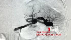Cứu sống bệnh nhân bị phình động mạch lách