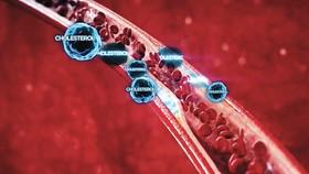 Kiểm soát cholesterol tốt, giảm 27% nguy cơ đột quỵ