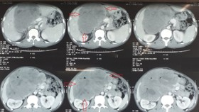 Phẫu thuật thành công u tá tràng lớn