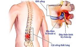 Nguyên nhân gây đau lưng, thoát vị đĩa đệm