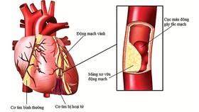 Những biểu hiện bệnh động mạch vành