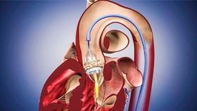 Kỹ thuật thay van tim động mạch chủ qua ống thông