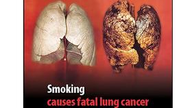 Các hãng thuốc lá Mỹ tự thú về tác hại của hút thuốc