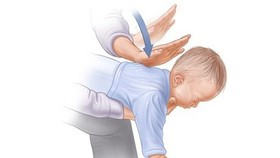 Khi trẻ bị hóc dị vật cần phải được sơ cứu  kịp thời và đúng cách. Ảnh minh họa.