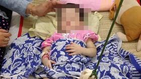 Bé gái 2 tuổi bị mẹ nuôi đánh gãy chân