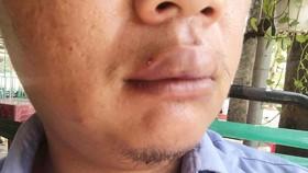 Phóng viên VOV bị hành hung, thương ở vùng mặt, kể lại sự việc.