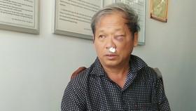 Phóng viên bị đánh dã man sau khi báo tin khai thác đất trái phép