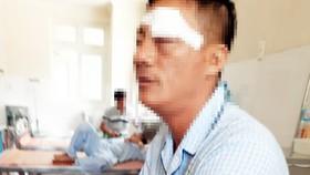 Mâu thuẫn ở bến xe Quy Nhơn, phụ xe bị bắn vào mắt