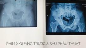 Phẫu thuật lấy gần 100 viên sỏi trong khớp háng nam thanh niên