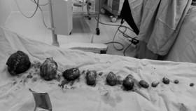 Phẫu thuật lấy thai kết hợp bóc đa nhân xơ tử cung cho sản phụ