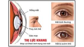 Các bệnh về mắt