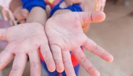Bệnh tay chân miệng tăng 4,4 lần so với cùng kỳ tại Vĩnh Long