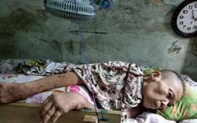 黃蘇蝦亟需再度入院接受治療。