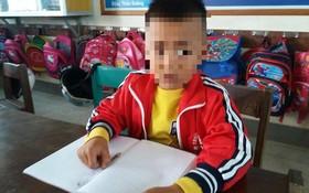 遭老師連摑兩巴掌致腦震盪的一年級小學生張玉海。(圖源:阮強)