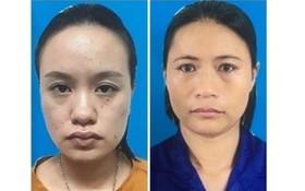 組織商業代孕嫌犯被起訴