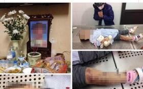 3歲女孩疑被親人虐待致死,屍體上還有許多瘀傷。(圖源:互聯網)