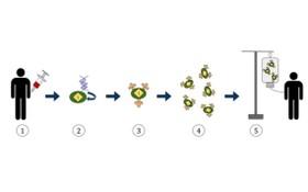 嵌合抗原受體 T 細胞免疫療法流程圖。