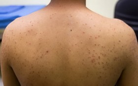 治療肌肉發炎卻引爆毛囊炎