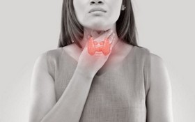 有這些症狀,當心橋本甲狀腺炎找上門