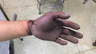 Vùng bàn tay và ngón tay của bệnh nhân tím, thiếu máu nuôi toàn bộ