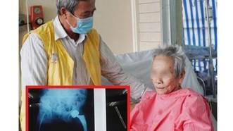Thay khớp háng nhân tạo cho cụ bà 106 tuổi