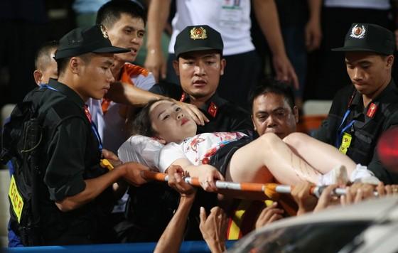 Nữ CĐV được đưa đi bệnh việni. Ảnh: VĂN LÂM