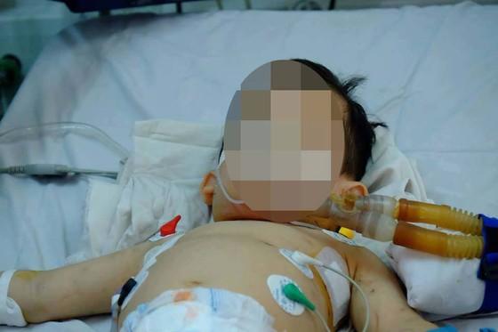 Bị chó cắn, hai trẻ nhập viện trong tình trạng nguy kịch ảnh 1