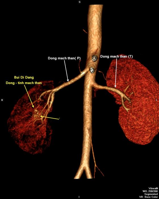 Can thiệp nội mạch thành công chữa dị động tĩnh mạch hiếm gặp ở thận  ảnh 1