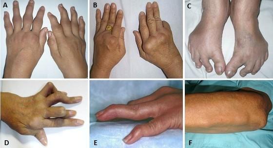 0,5% dân số Việt Nam mắc viêm khớp dạng thấp ảnh 1