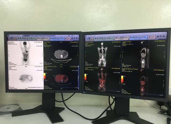 Bệnh viện Ung bướu TPHCM đưa vào hoạt động máy PET/CT trong chẩn đoán điều trị ung thư ảnh 1