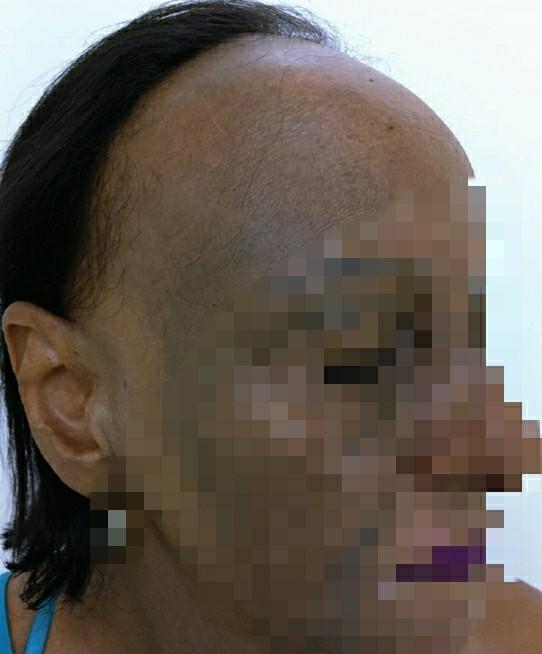 Bệnh nhân mắc bệnh lý về da và tóc hiếm gặp ảnh 1