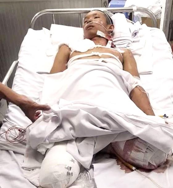 Một thanh niên nghèo bị tai nạn phải cắt bỏ 2 chân ảnh 1