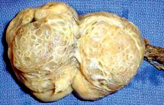 Nguy cơ ung thư tinh hoàn ở người trẻ ảnh 1