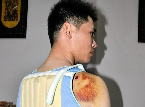 Khởi tố con trai bí thư đảng ủy xã dùng súng điện bắn người ảnh 1