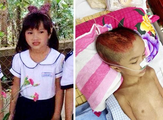 Bé 7 tuổi di chứng nặng sau tai nạn ảnh 1