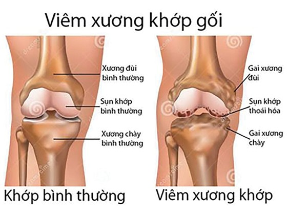 Từ biệt đau đớn do bệnh xương khớp ảnh 1