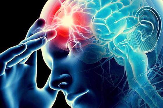 Ứng dụng trí tuệ nhân tạo trong chẩn đoán điều trị đột quỵ ảnh 1