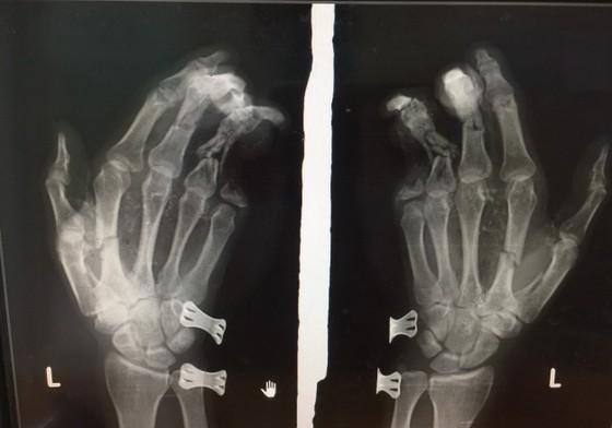 Điện thoại phát nổ khi đang sạc khiến nam thanh niên bị dập nát bàn tay  ảnh 1