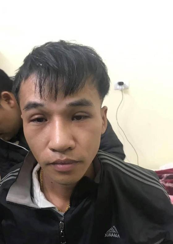 Phẫu thuật thay đổi hình dạng, nghi can trộm 200 cây vàng ở Bình Thuận vẫn không trốn thoát ảnh 1