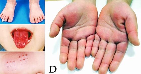 WHO điều tra hội chứng viêm hiếm gặp nghi liên quan Covid-19 ảnh 1